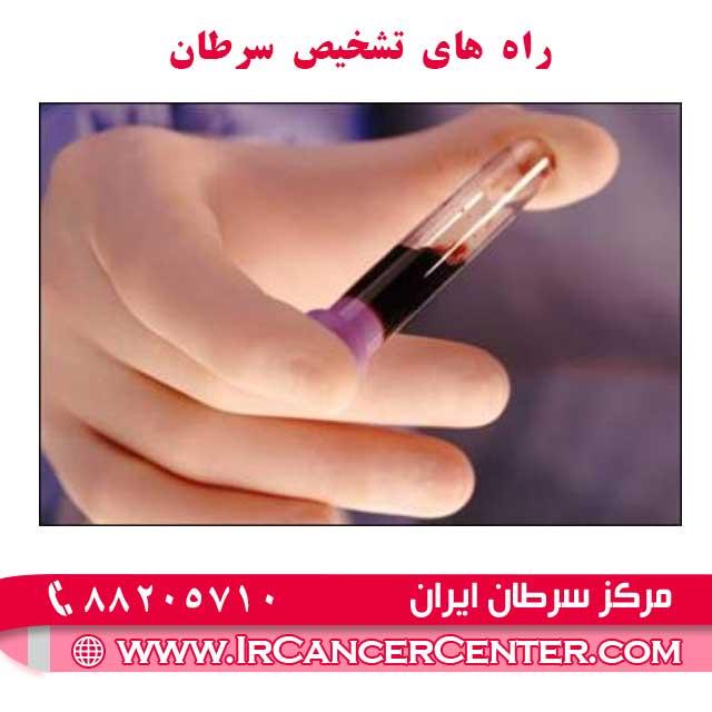 راه های تشخیص سرطان