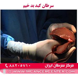 سرطان کبد بد خیم